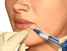 Lip Injections and Augmentation in Miami