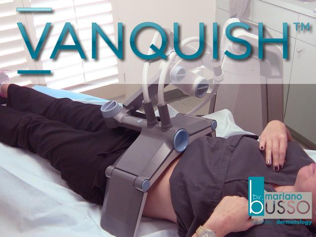 vanquish-pic