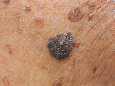 Closeup of Melanoma skin cancer