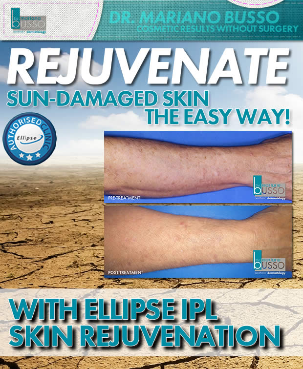 ellipse-skin-rejuv