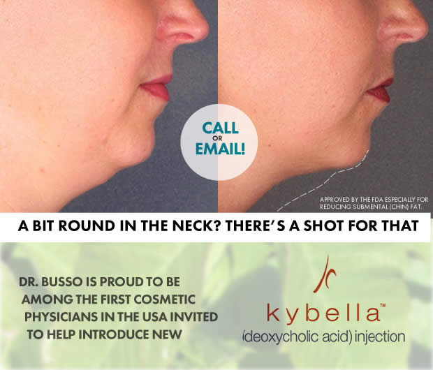 kybella-announcement