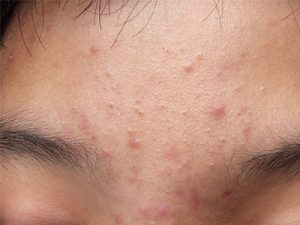 Laser Acne Therapy