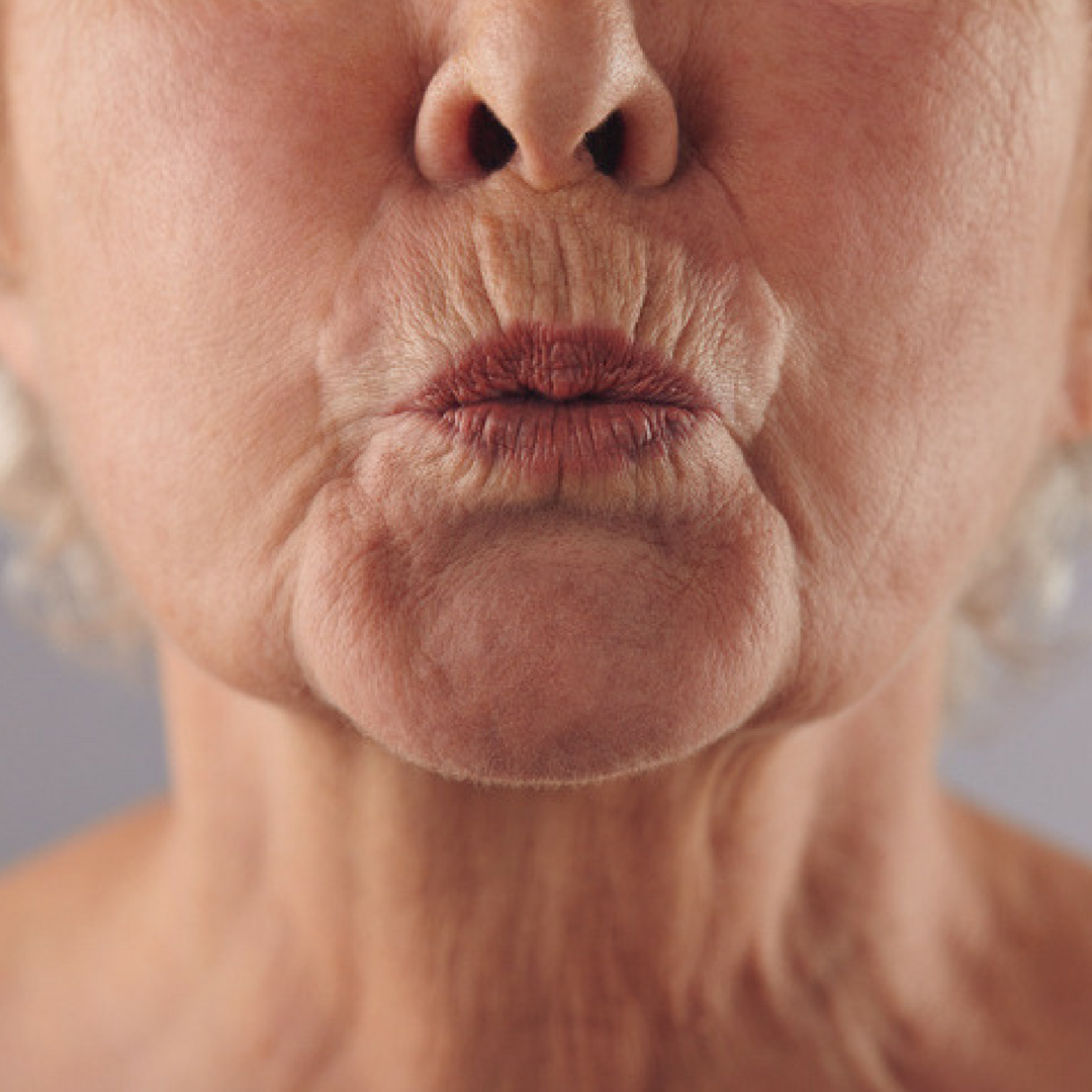 How to Combat Lip Lines and Wrinkles